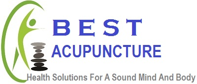 Best Acupuncture